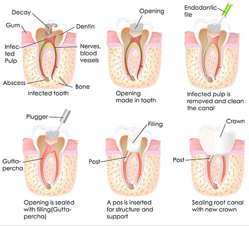 Root Canals in Racine